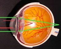 https://nasrulbintang.files.wordpress.com/2011/03/astigmatisme.jpg?w=200